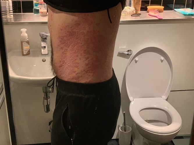 Crowdfunding to support my chronic psoriasis treatment on